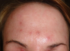 before-microdermabrasion-and-chemical-peel